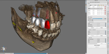 Dental implants 3D scan - single view